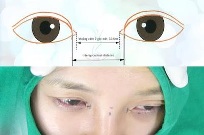mở rộng góc mắt có để lại sẹo