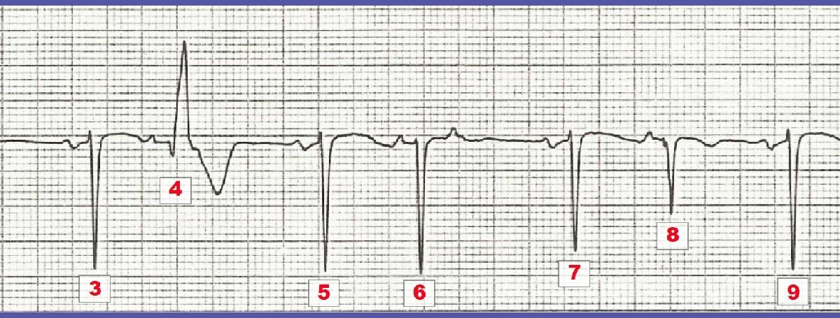 ECG Interpretation: ECG Interpretation Review #33 (Bundle