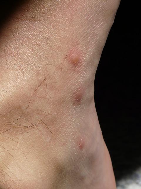 Las mordeduras de pulga se infectan con facilidad