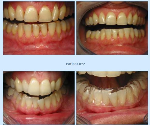 Orthodontie pour adultes redressement de molaires dents extraites