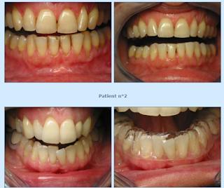 Le blanchiment dentaire par gouttières
