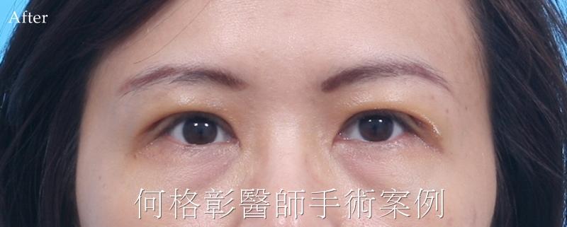 台中提眼肌手術專家何格彰醫師