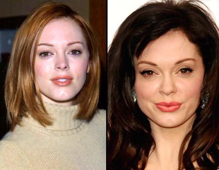 Chatter Busy Rose Mcgowan Cosmetic Surgery
