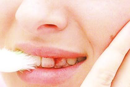 Cara Menghentikan Pendarahan Setelah Mencabut Gigi