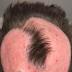 Mulher perde parte do couro cabeludo ao tentar tingir o cabelo