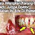 Tak Payah Jumpa Doktor ! Inilah Cara SENANG & BERKESAN Nak Hilangkan Karang Gigi Anda !