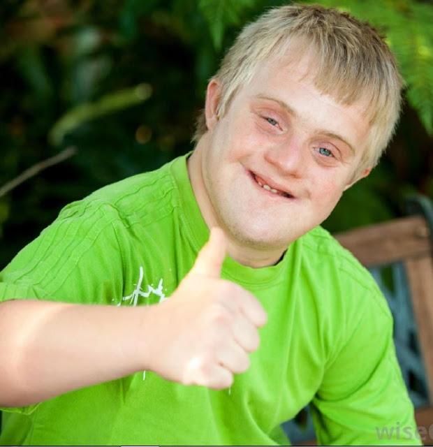 ciri-ciri anak down syndrome