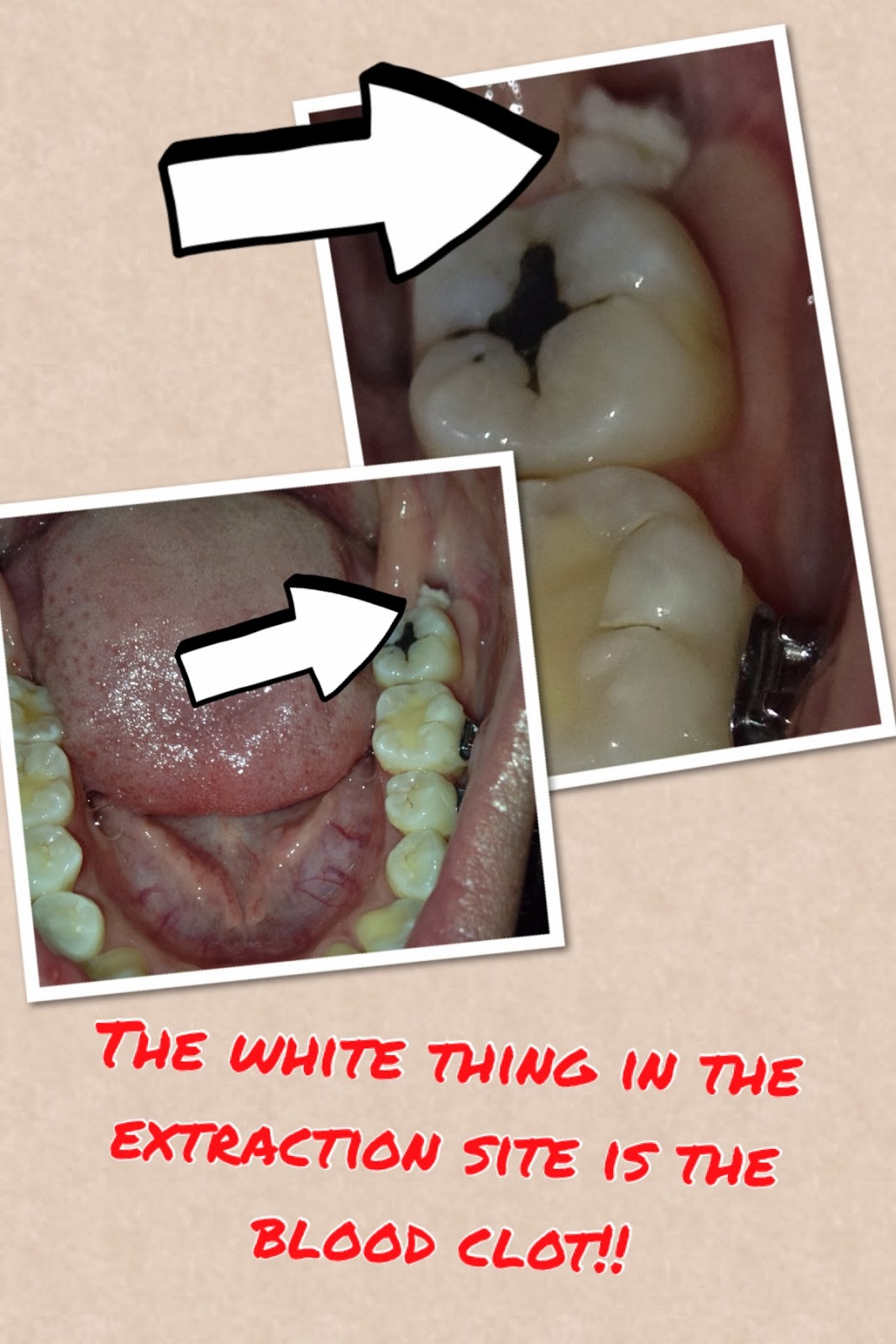 My Journey With Self Ligating Braces Wisdom Tooth Extraction Update 14days 2 Weeks