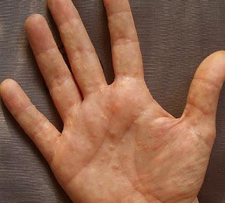 Obat Tradisional Dermatitis Dyshidrotic