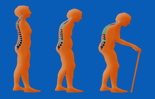 Faktor-faktor Resiko Terjadinya Osteoporosis