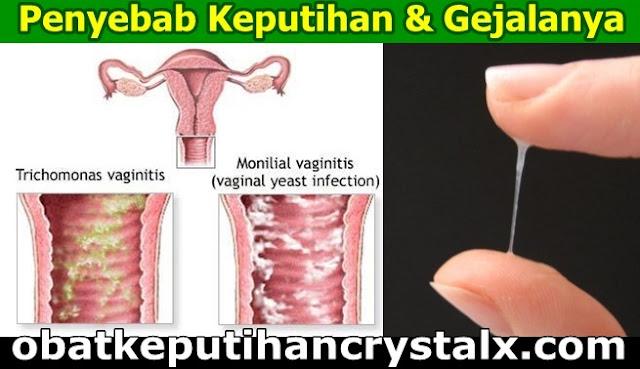 penyebab keputihan ncx nasa obat keputihan crystal x