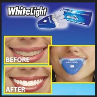 Cara Cepat Memutihkan Gigi Kuning Dengan Obat Pemutih Gigi Info