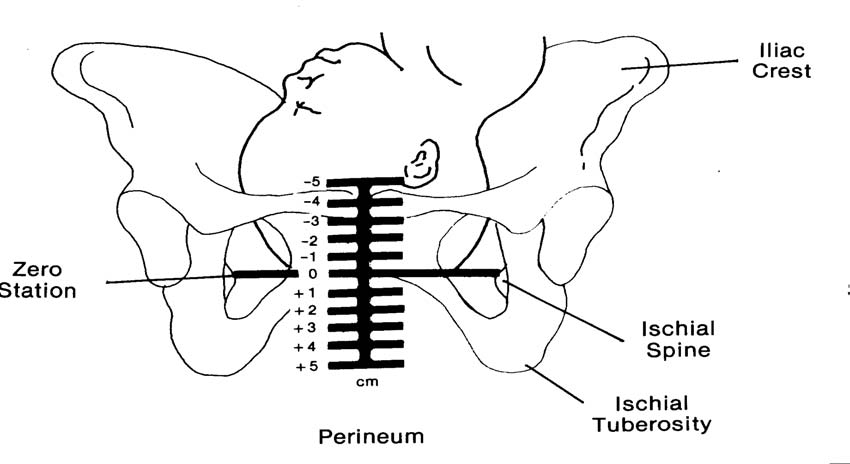 pregnant belly diagram