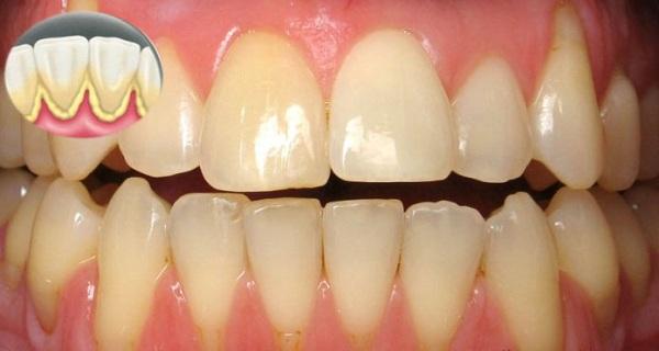 Basmi Kuman Dan Atasi Gigi Yang Kuning Dan Banyak Plak Dengan Tips