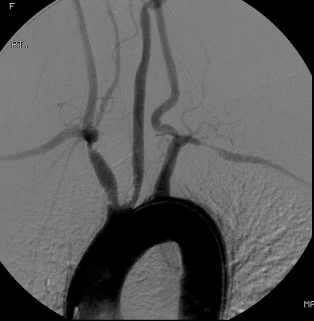 Giant Cell Arteritis Ultrasound