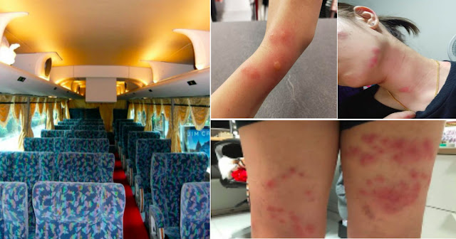 Girl Suffers Blisters From Bus/World Of Bus