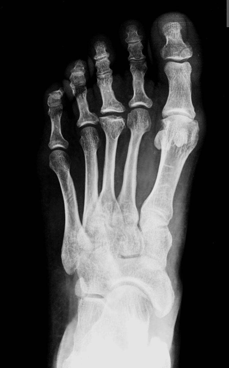 My Beadialogy Dolce And Gabbana Fall 2012 Rtw Part2: MY E-RADIOLOGY CASES: CASE 356 : 35 Year-old Woman With