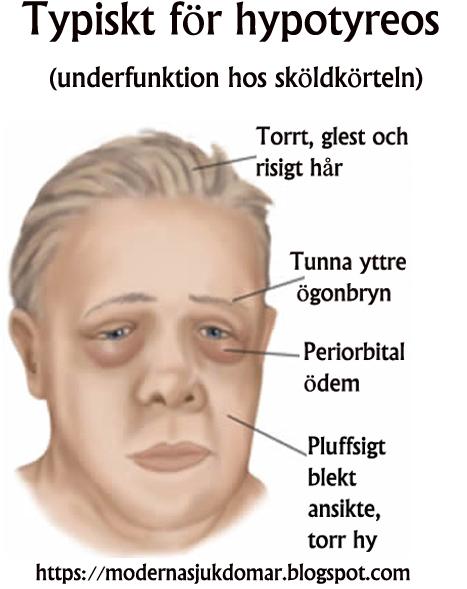 obehandlad hypotyreos risker