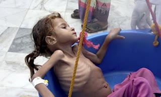 Dampak Pemberontakan Syiah Houthi: PBB Mengaku Butuh $ 4 Miliar Tuk Ringankan Krisis Kemanusiaan Yaman