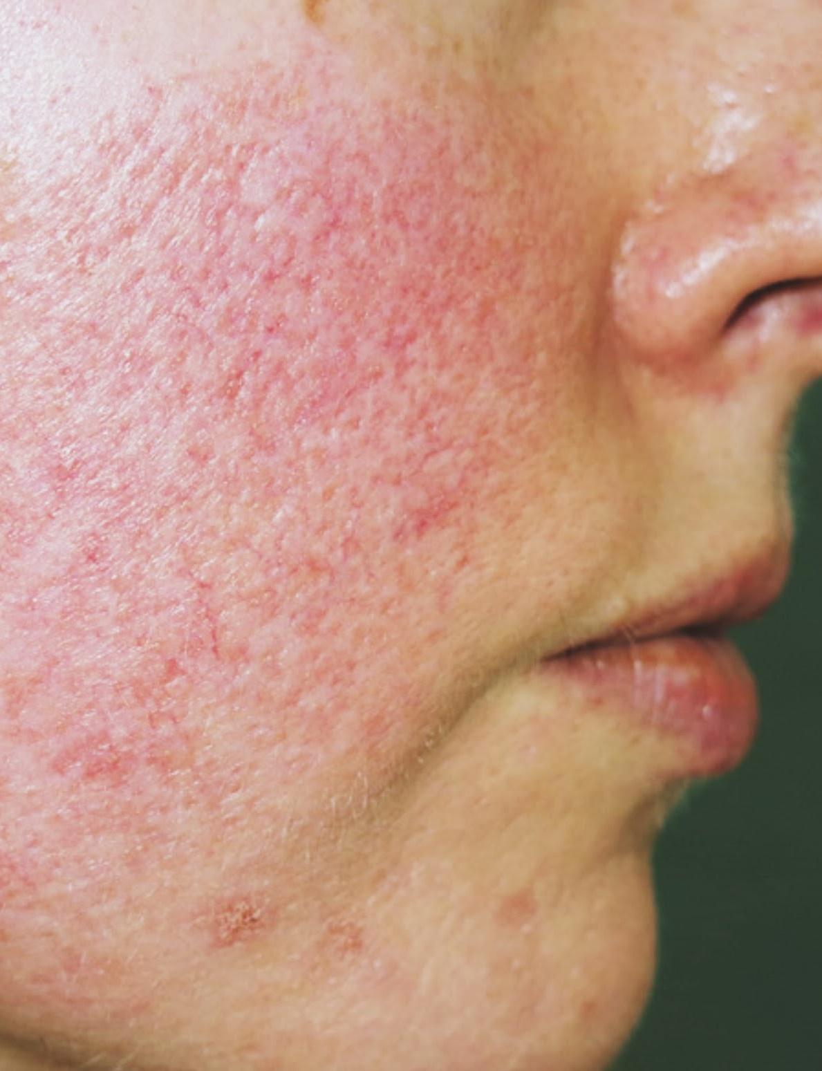 Trądzik różowaty | Kompendium wiedzy o acne rosacea