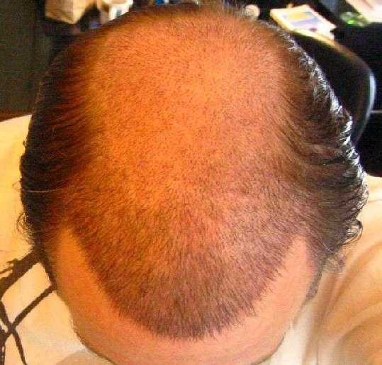The Many Ways To Treat Hair Loss Hair Loss Talk