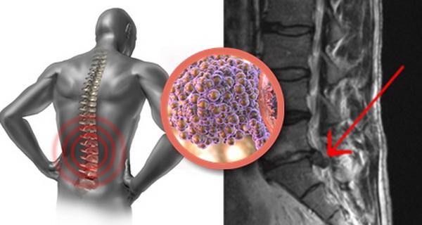 aceasta forma de cancer omoara zilnic mii de oameni