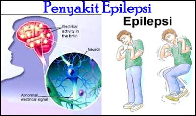 http://www.pusatmedik.org/2016/06/pengertian-definisi-penyebab-dan-pengobatan-serta-penanganan-penyakit-epilepsi-menurut-ilmu-kedokteran.html
