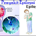 Pengertian Definisi Penyebab Dan Pengobatan Serta Penanganan Penyakit Epilepsi Menurut Ilmu Kedokteran