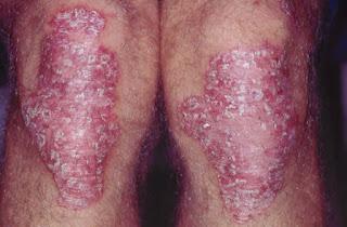 Obat gatal eksim de nature adalah obat herbal untuk berbagai jenis penyakit kulit yang telah terbukti keampuhannya