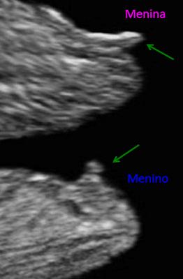 Ultrassonografia, primeiro trimestre, translucência nucal, TN, Nasceu uma Mãe, gravidez, sexo do bebê, é menino, é menina, Mamãe Gatona, síndrome de down, doença cardíacas