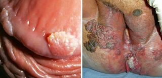 Obat Bintik Merah Gatal Pada Batang Kelamin