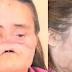 Πριν 2 χρόνια ο άντρας της την πυροβόλησε στο πρόσωπο.. Σήμερα όμως παίρνει την εκδίκηση της!