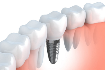 Factores de riesgo en implantes dentales