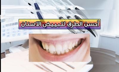 طرق تبييض الأسنان ونصائح العناية بها