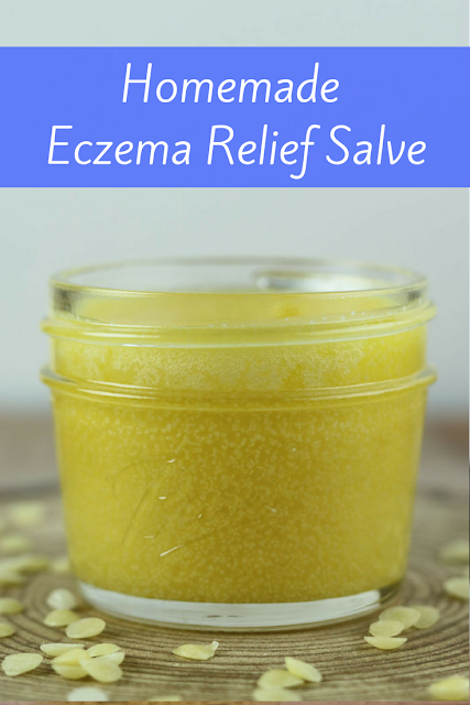 If you are looking for eczema treatments, try this homemade remedy for eczema.  This salve was my cure for eczema.  I used this to help my skin heal and finally got rid of it for good.  Your results may vary, but this helped me!  #eczema #diy #salve #diysalve #naturalremedy #essentialoils
