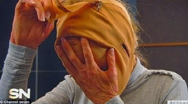 Gadis 28 Tahun Ini Menutupi Wajahnya Dengan Topeng Selama 2 Tahun. LIhat 5 Foto Hasilnya Akan Buat anda TERKEJUT