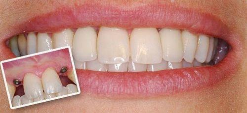 Cấy ghép Implant Nha Khoa phục hình răng mất -1