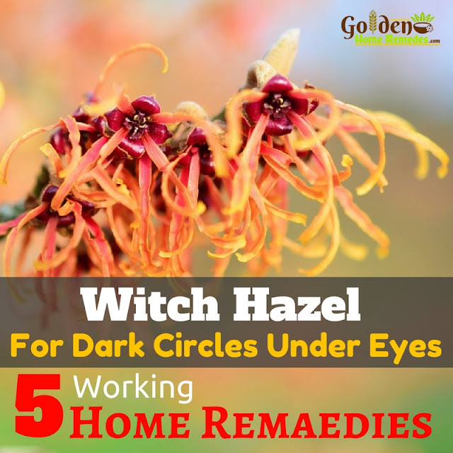 Witch Hazel For Dark Circles, Witch Hazel Dark Circles, How To Use Witch Hazel For Dark Circles, Is Witch Hazel Good For Dark Circles, Witch Hazel And Dark Circles, How To Get Rid Of Dark Circles, How To Remove Dark Circles, Home Remedies For Dark Circles, Dark Circle Home Remedies, Dark Circle Treatment, Dark Circle Remedies, How To Treat Dark Circles,