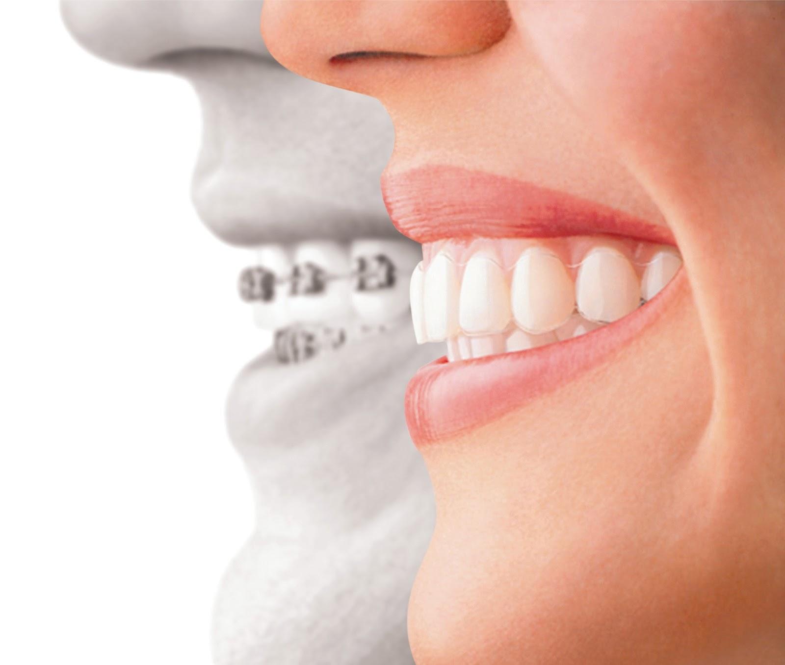 E Possivel Fazer Clareamento Dental Quando Se Usa Aparelho
