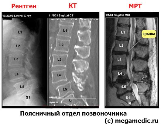 Позвоночник на КТ и МРТ