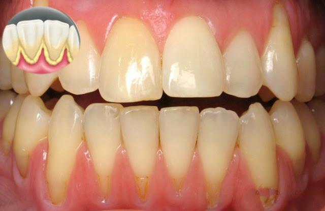 Taches sur les dents