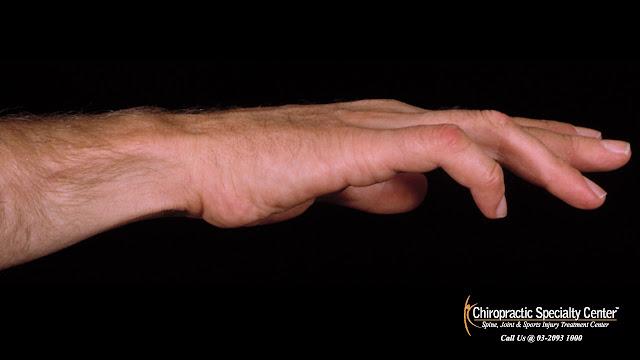 5th finger impacted by ulnar nerve compression