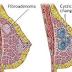 Galactocele Definition, Symptoms, Causes, Treatment