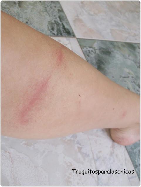 quemaduras en la pierna con cera