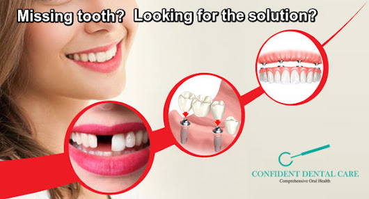 Missing front tooth? Looking for the solution