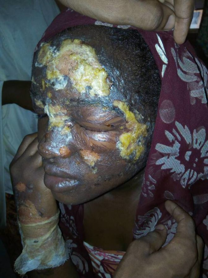 Too Sad! Jealous Woman Pours Hot Water on Housewife (Graphic Photo)
