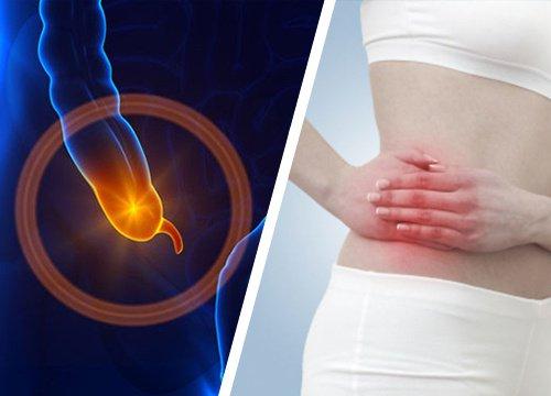 http://gastrosurgeoncochin.com/appendicitis.html