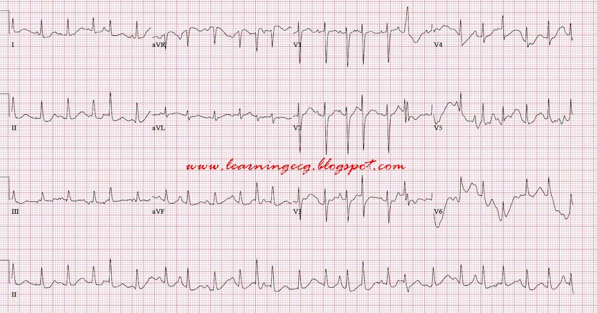 Ecg Rhythms Multifocal Atrial Tachycardia Mat Chaotic
