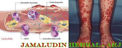 http://tilupuluhherbal.blogspot.co.id/2017/09/cara-mengobati-vaskulitis-radang_29.html