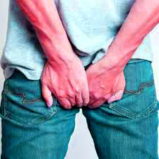 Treating hemorrhoids in many ways at home